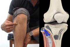Selbsttherapie Bein Knie praktisch